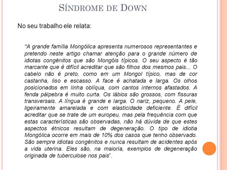 Síndrome de Down No seu trabalho ele relata: