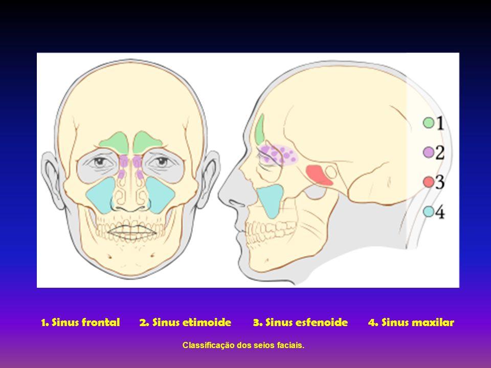 Classificação dos seios faciais.