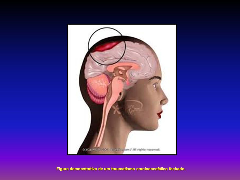 Figura demonstrativa de um traumatismo cranioencefálico fechado.