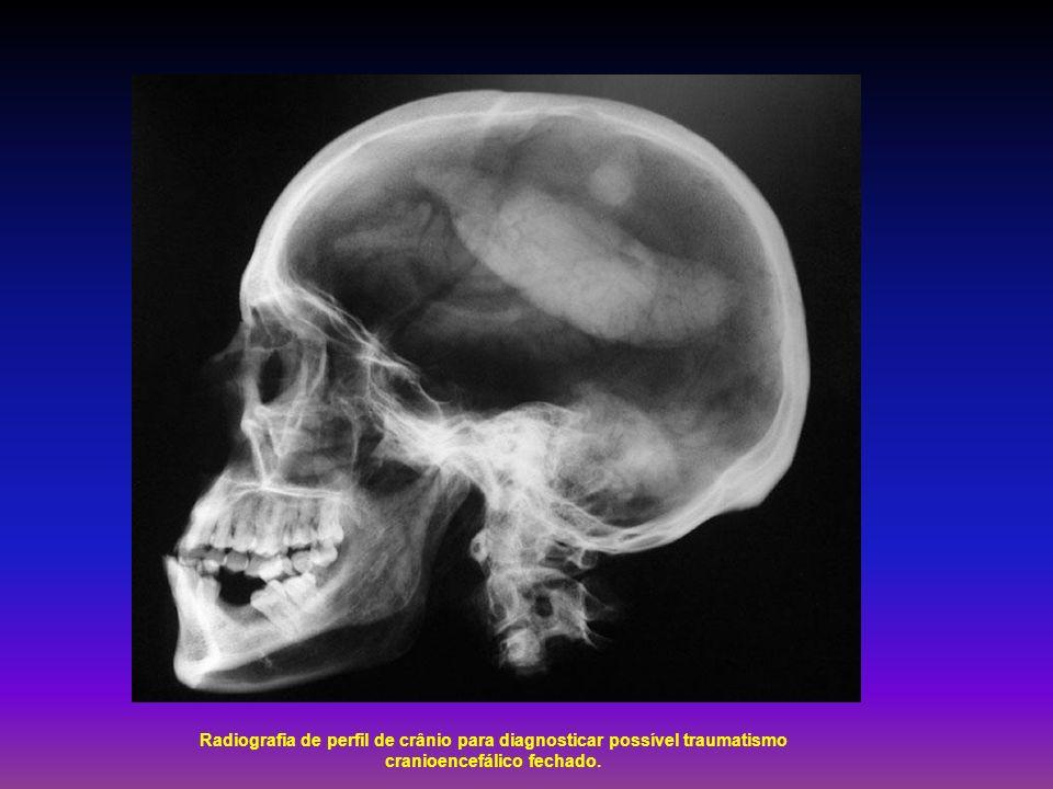 Radiografia de perfil de crânio para diagnosticar possível traumatismo cranioencefálico fechado.