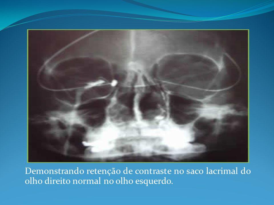 Demonstrando retenção de contraste no saco lacrimal do olho direito normal no olho esquerdo.
