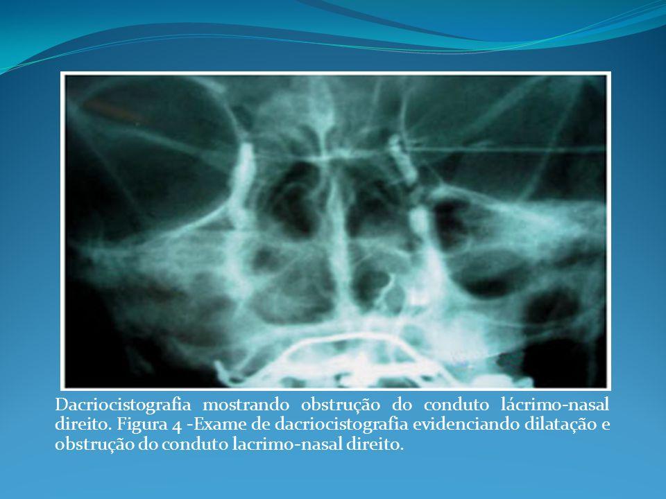 Dacriocistografia mostrando obstrução do conduto lácrimo-nasal direito