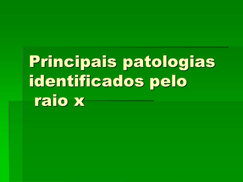 Principais patologias identificados pelo raio x