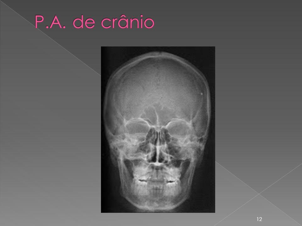 P.A. de crânio