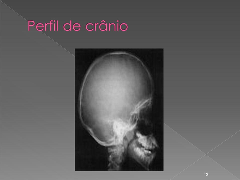 Perfil de crânio