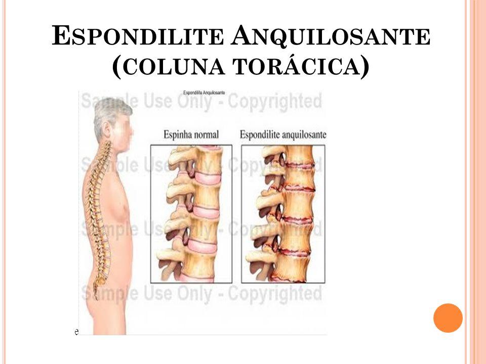 Espondilite Anquilosante (coluna torácica)
