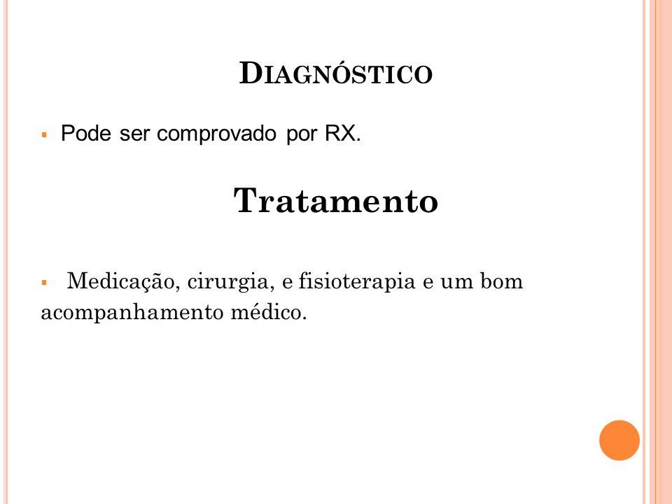 Tratamento Diagnóstico Pode ser comprovado por RX.