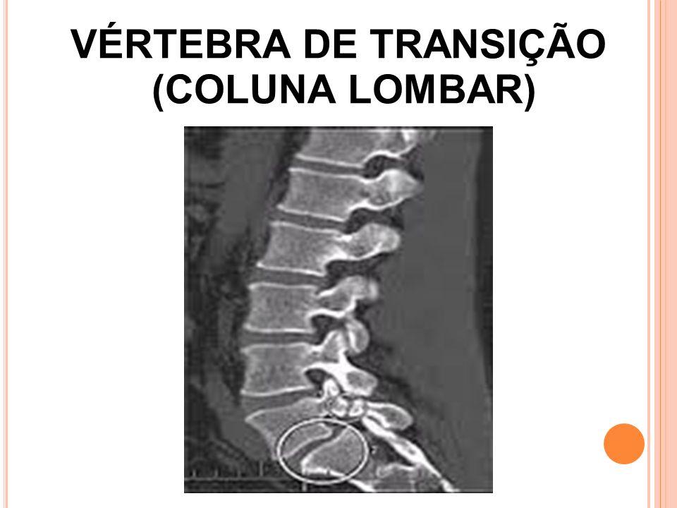 VÉRTEBRA DE TRANSIÇÃO (COLUNA LOMBAR)
