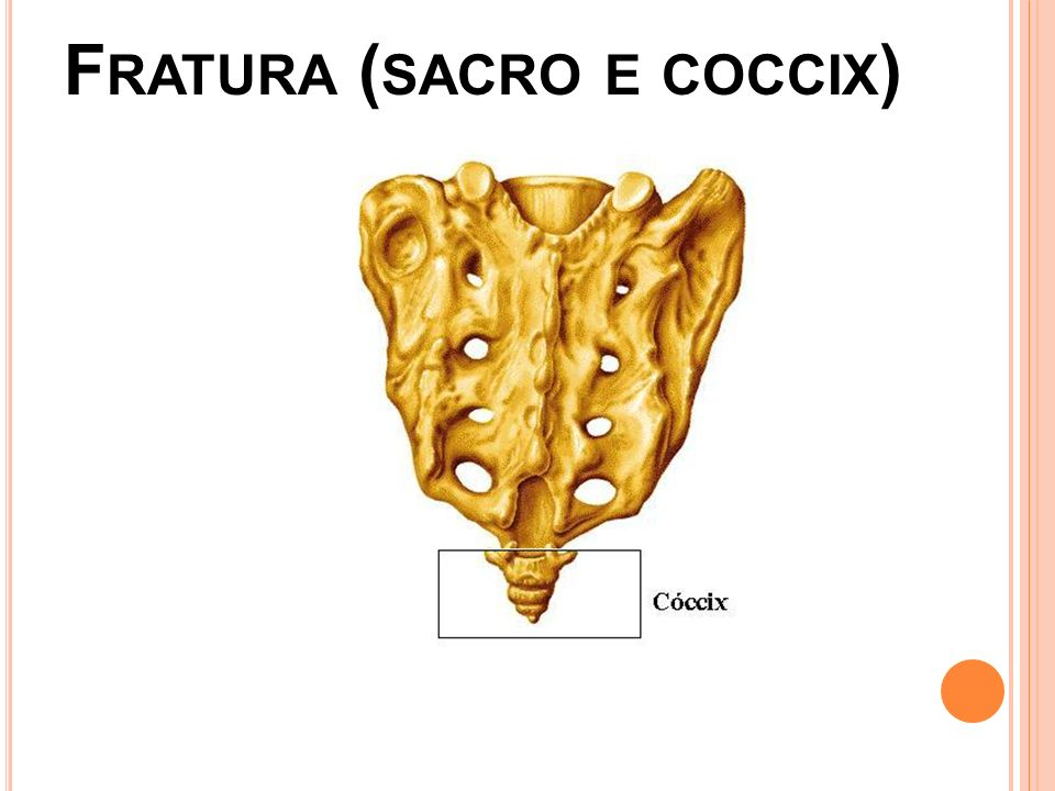 Fratura (sacro e coccix)