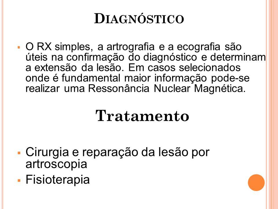 Tratamento Diagnóstico Cirurgia e reparação da lesão por artroscopia