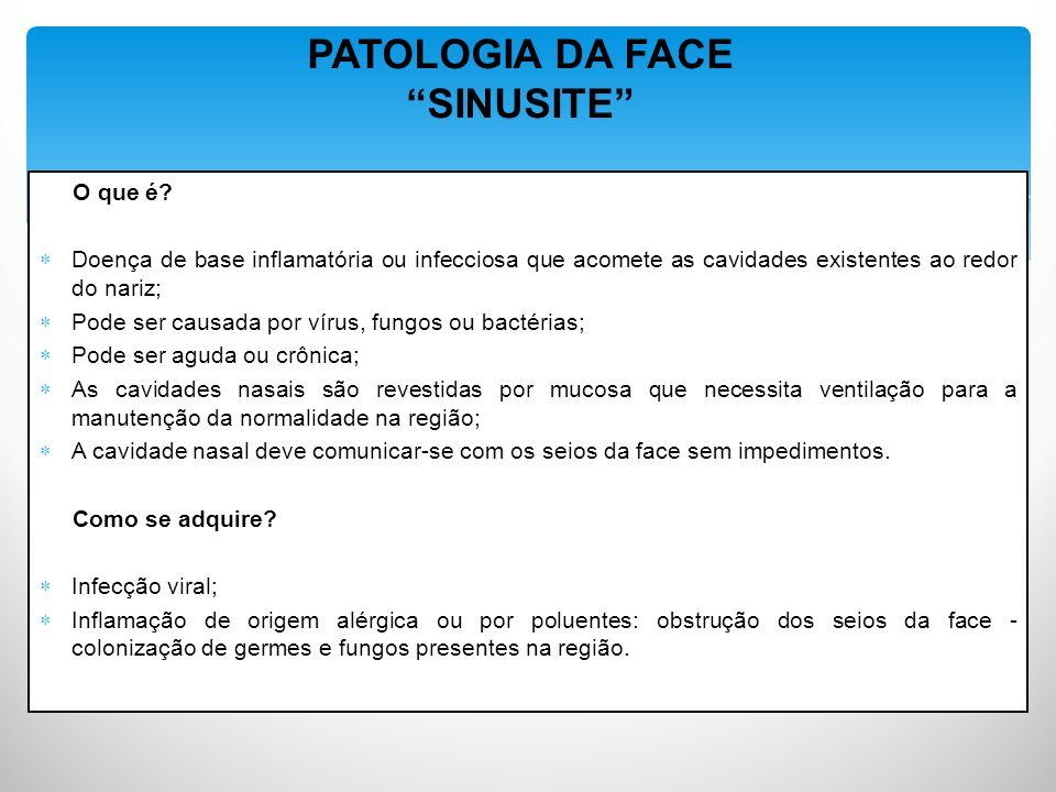 PATOLOGIA DA FACE SINUSITE