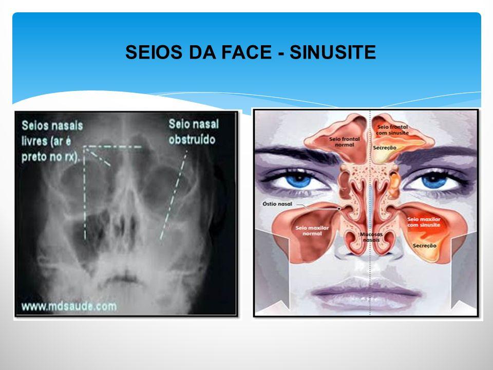 SEIOS DA FACE - SINUSITE