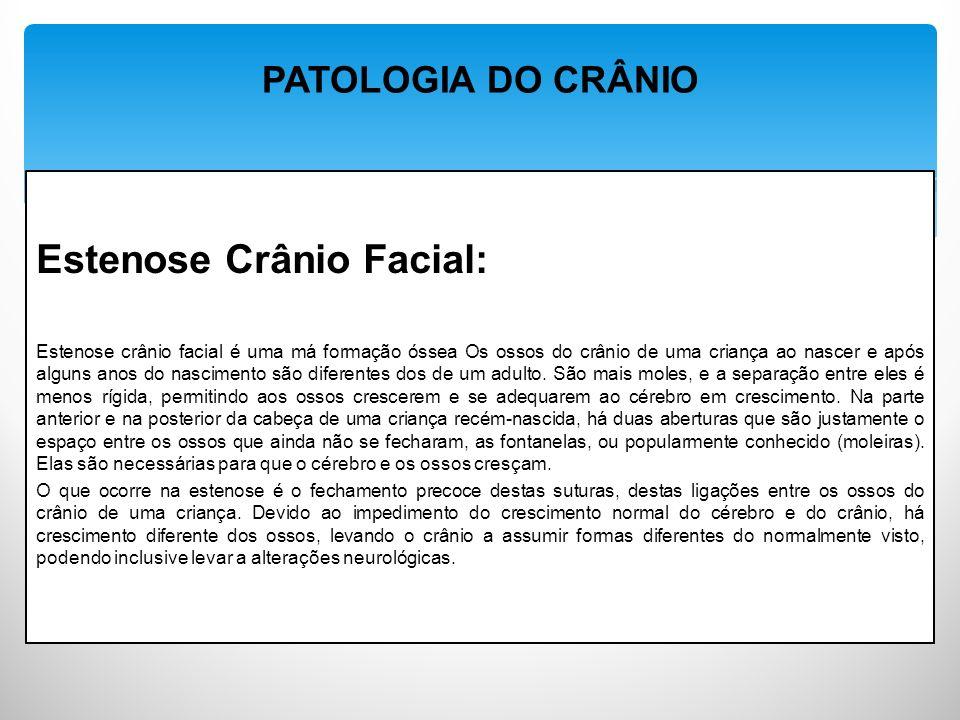Estenose Crânio Facial: