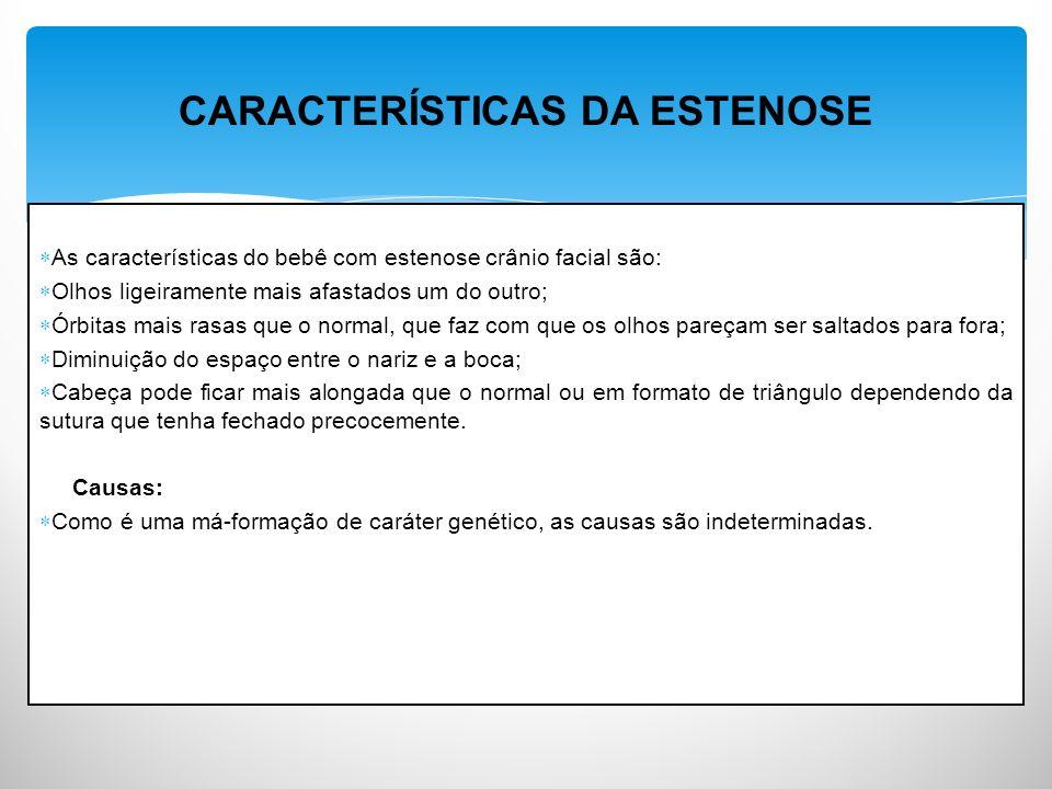 CARACTERÍSTICAS DA ESTENOSE