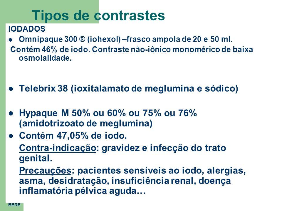 Tipos de contrastes Telebrix 38 (ioxitalamato de meglumina e sódico)