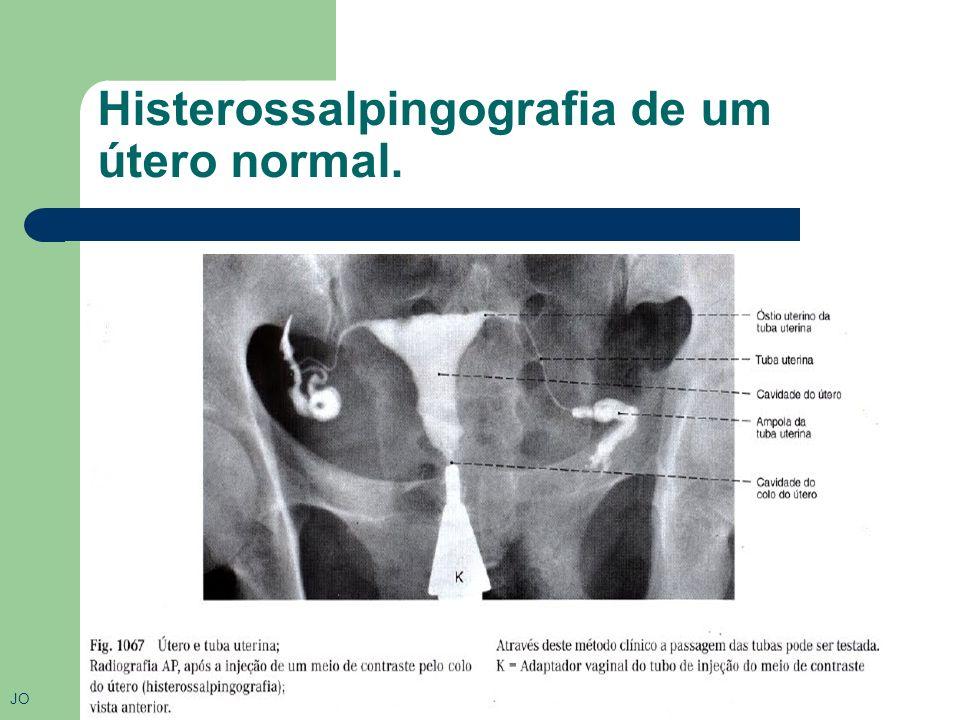 Histerossalpingografia de um útero normal.