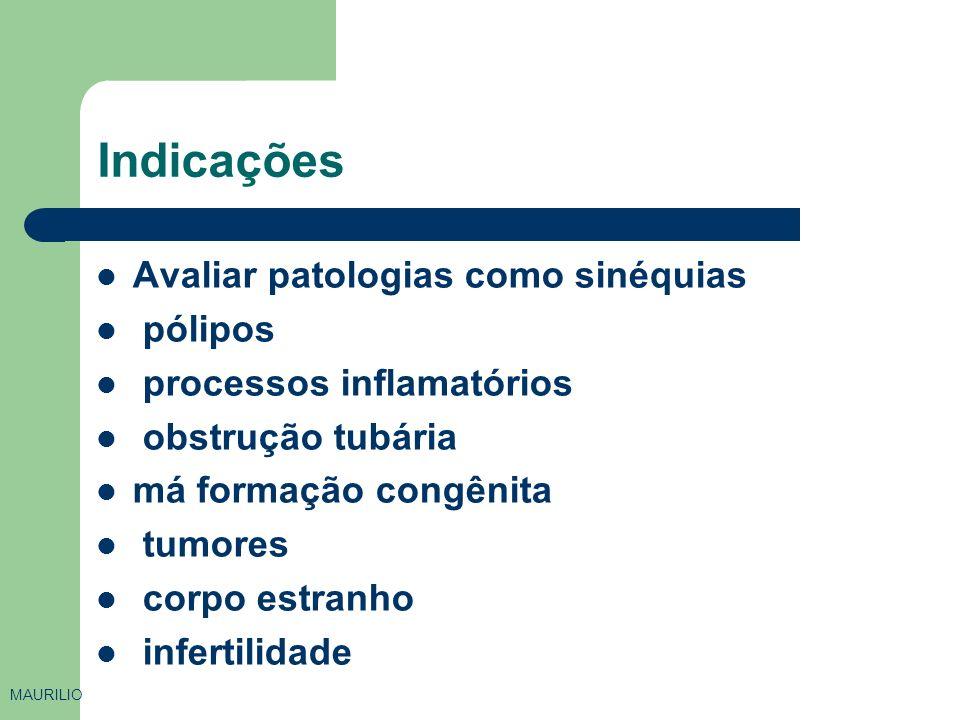 Indicações Avaliar patologias como sinéquias pólipos