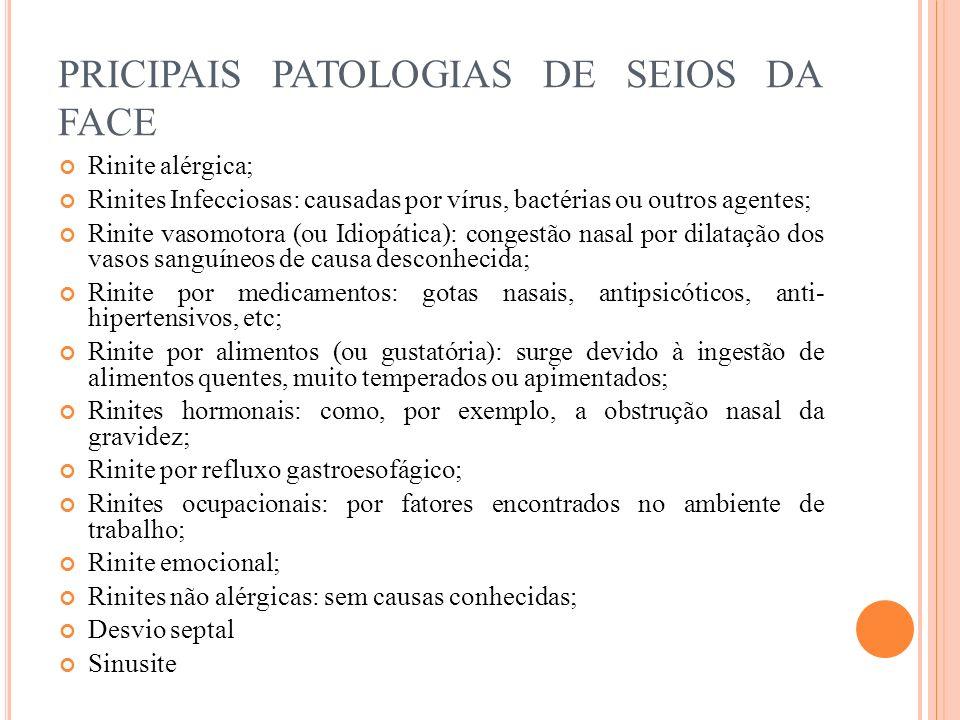 PRICIPAIS PATOLOGIAS DE SEIOS DA FACE