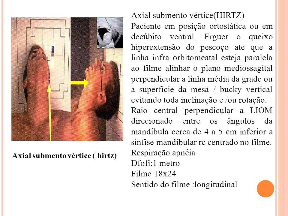 Axial submento vértice(HIRTZ)