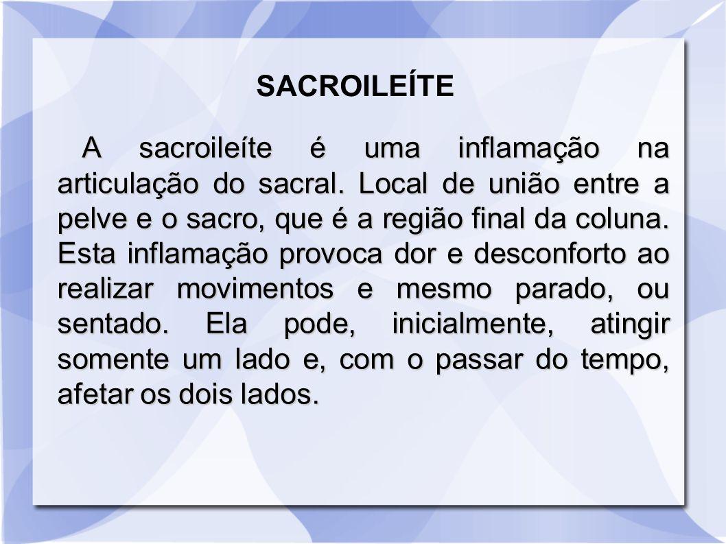 SACROILEÍTE
