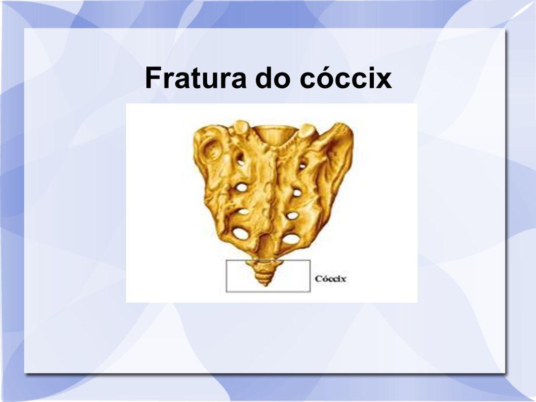 Fratura do cóccix