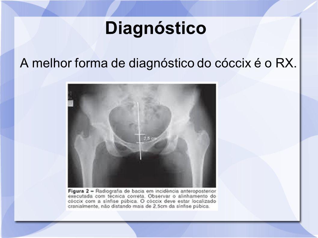 A melhor forma de diagnóstico do cóccix é o RX.