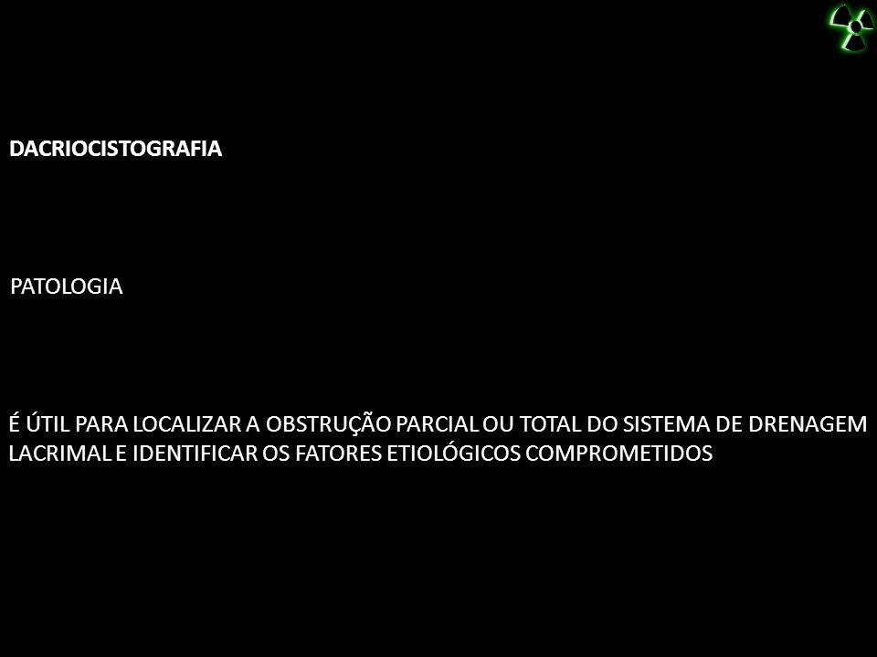 DACRIOCISTOGRAFIA PATOLOGIA.