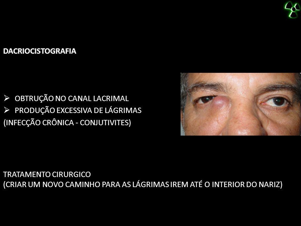 DACRIOCISTOGRAFIA OBTRUÇÃO NO CANAL LACRIMAL. PRODUÇÃO EXCESSIVA DE LÁGRIMAS. (INFECÇÃO CRÔNICA - CONJUTIVITES)