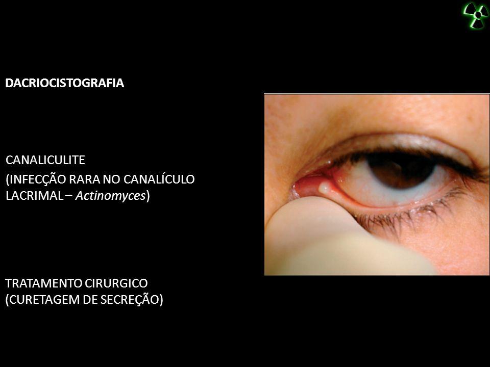 DACRIOCISTOGRAFIA CANALICULITE. (INFECÇÃO RARA NO CANALÍCULO LACRIMAL – Actinomyces) TRATAMENTO CIRURGICO.