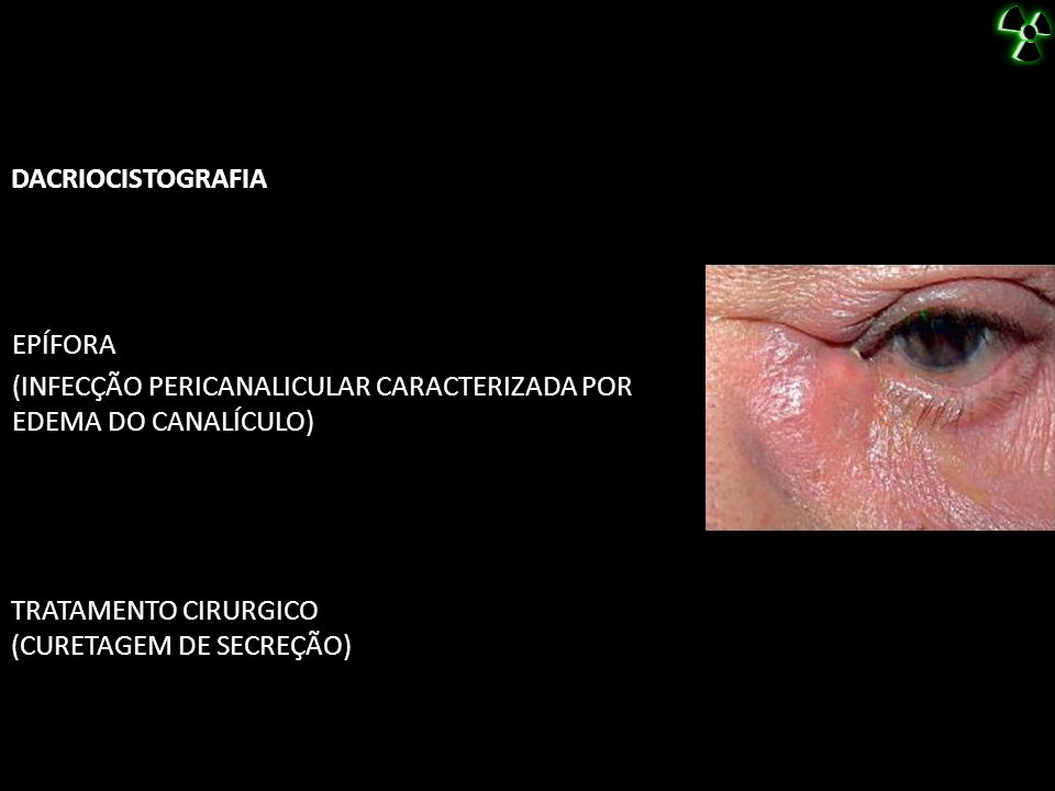 DACRIOCISTOGRAFIA EPÍFORA. (INFECÇÃO PERICANALICULAR CARACTERIZADA POR EDEMA DO CANALÍCULO) TRATAMENTO CIRURGICO.