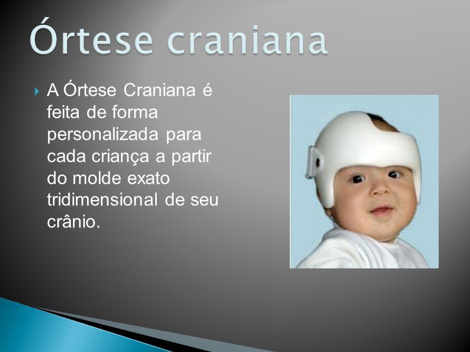 Órtese craniana A Órtese Craniana é feita de forma personalizada para cada criança a partir do molde exato tridimensional de seu crânio.