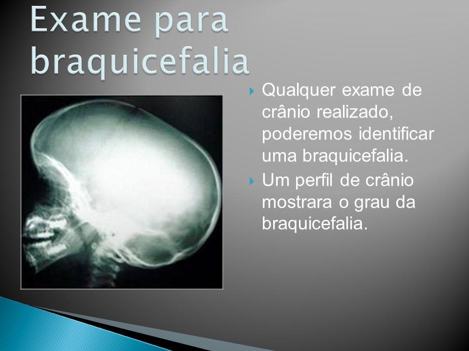 Exame para braquicefalia