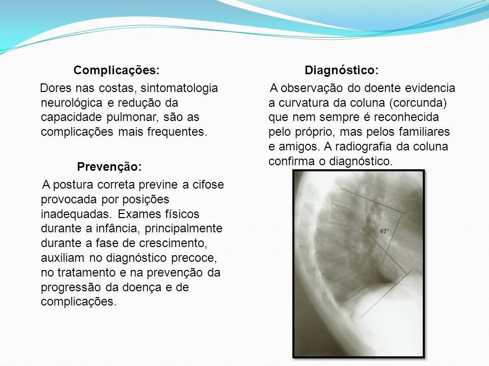 Complicações:Dores nas costas, sintomatologia neurológica e redução da capacidade pulmonar, são as complicações mais frequentes.