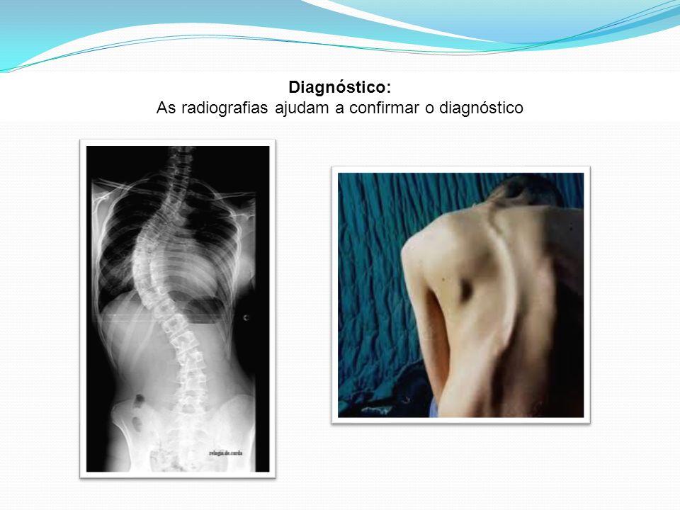 As radiografias ajudam a confirmar o diagnóstico