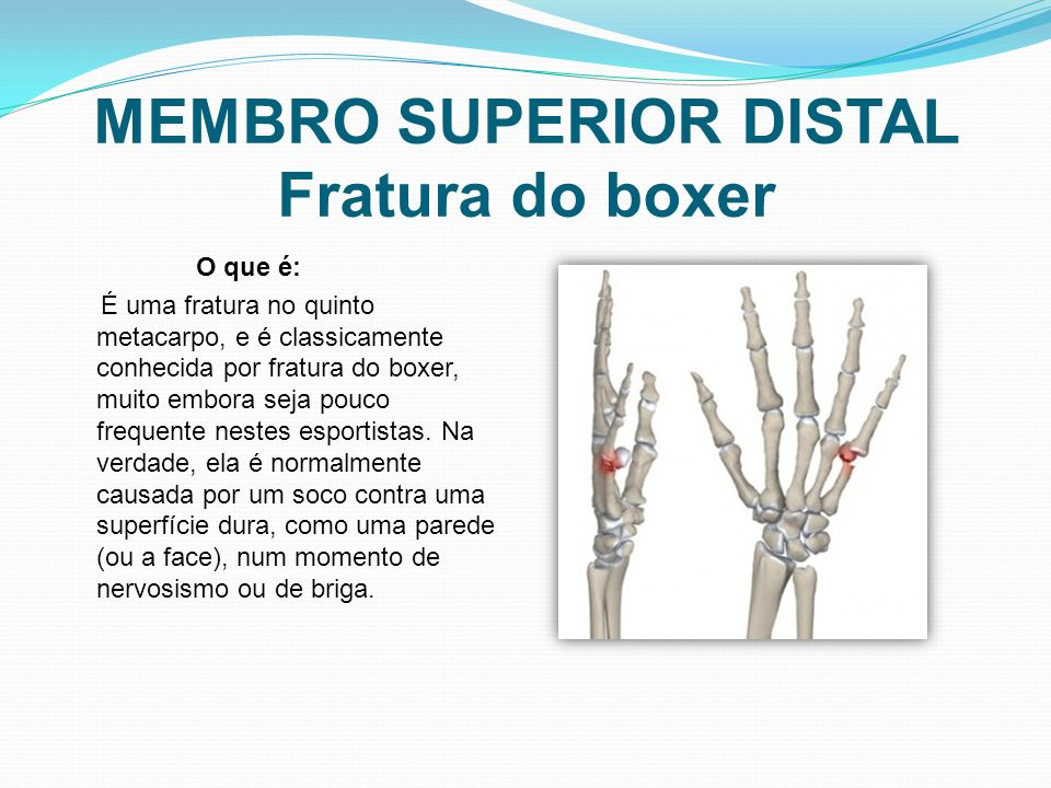 MEMBRO SUPERIOR DISTAL Fratura do boxer