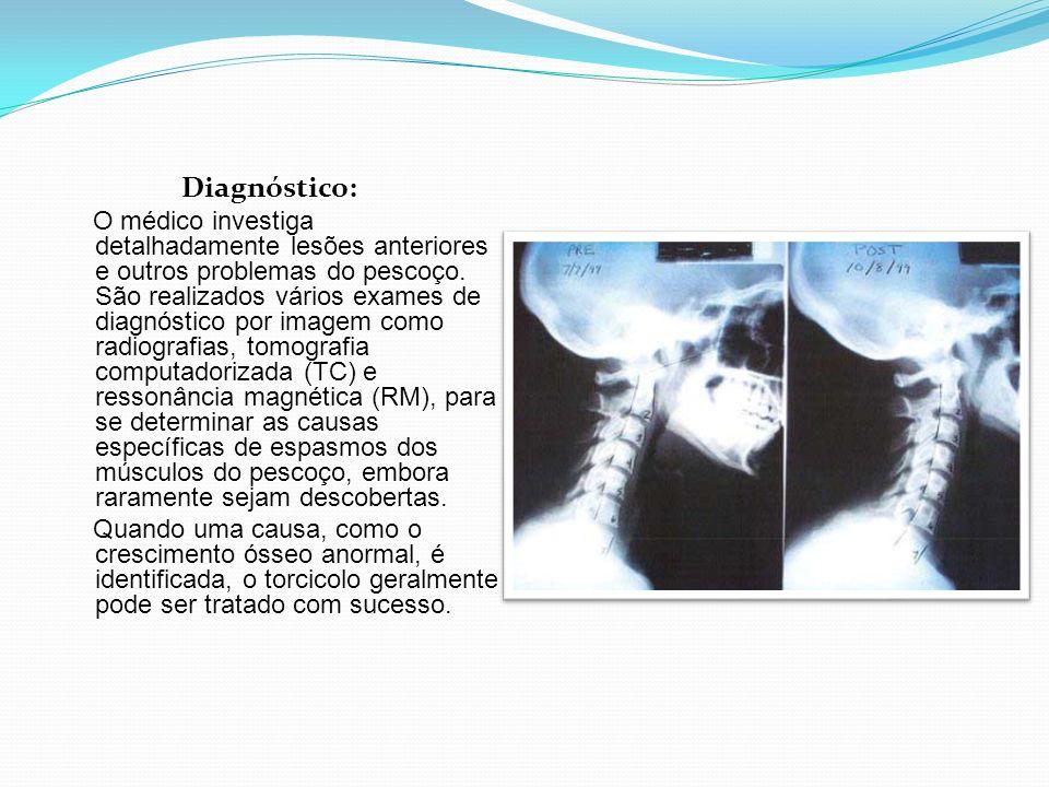 Diagnóstico: