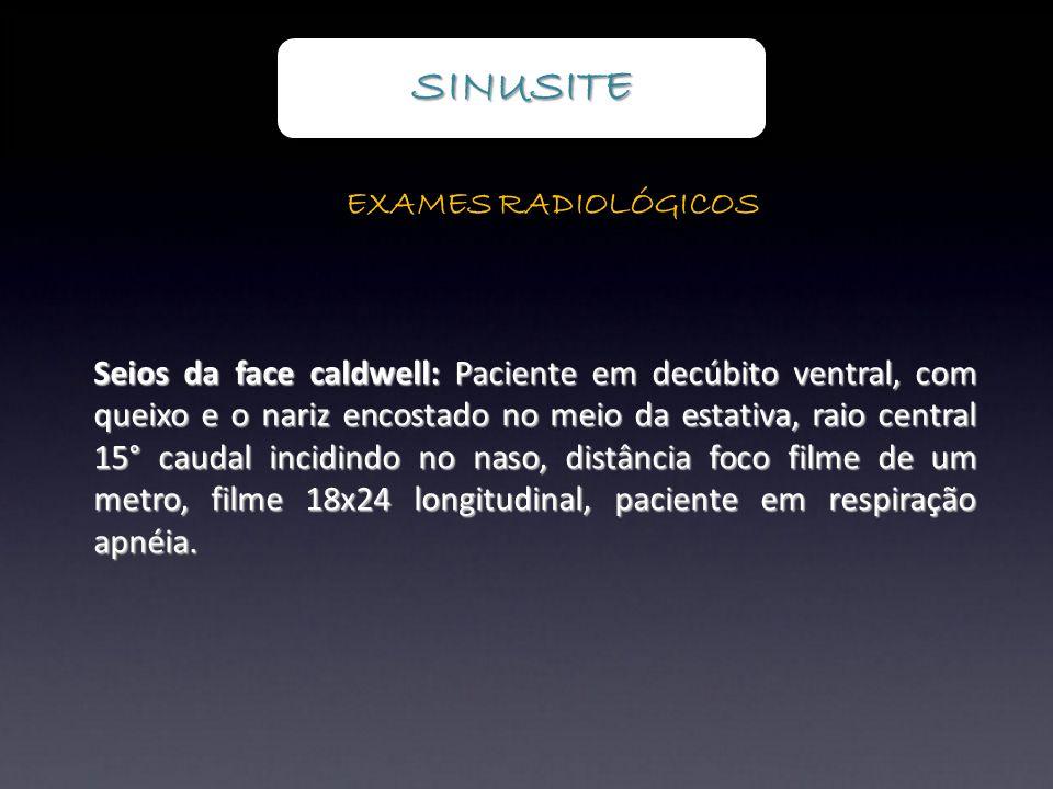 SINUSITE EXAMES RADIOLÓGICOS