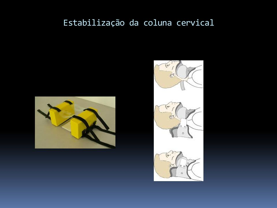 Estabilização da coluna cervical