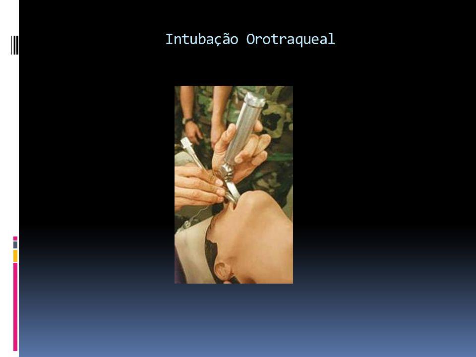 Intubação Orotraqueal