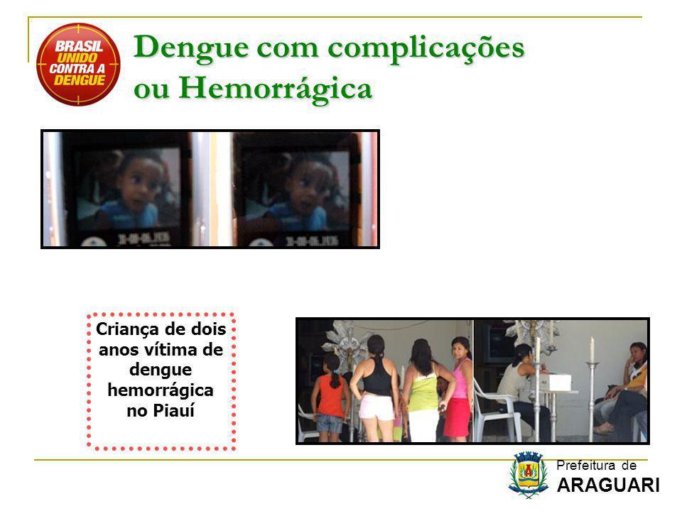 Dengue com complicações ou Hemorrágica