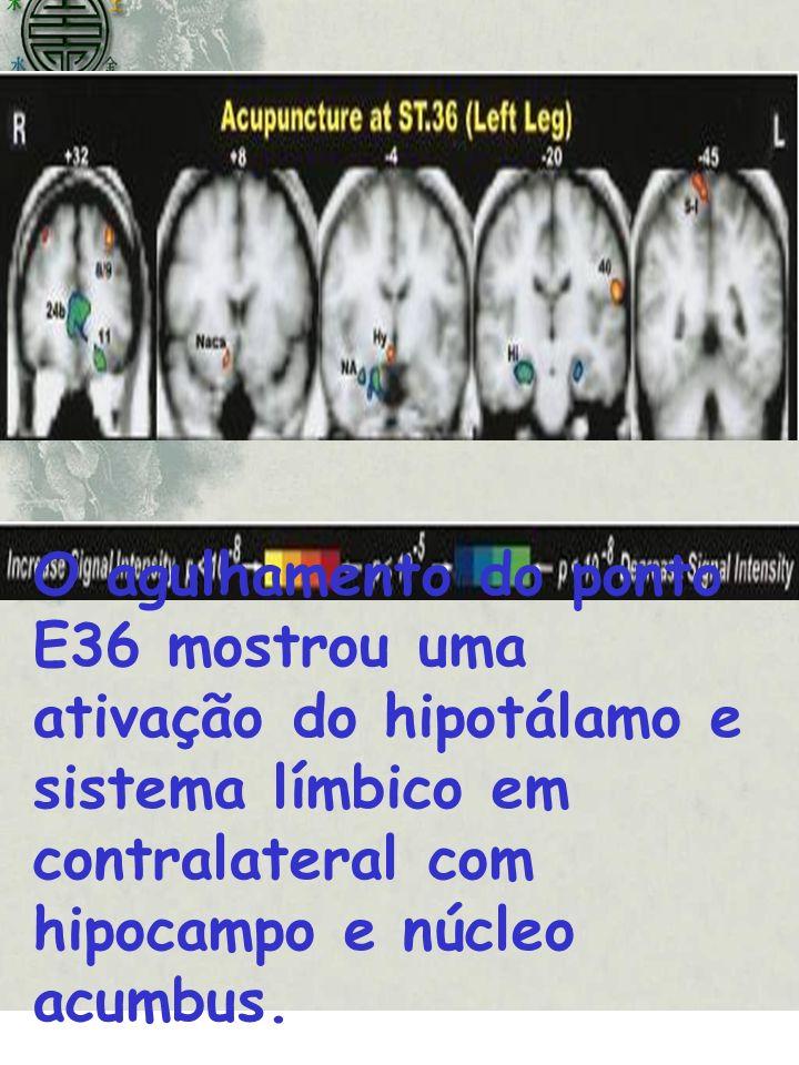 O agulhamento do ponto E36 mostrou uma ativação do hipotálamo e sistema límbico em contralateral com hipocampo e núcleo acumbus.