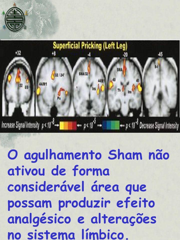 O agulhamento Sham não ativou de forma considerável área que possam produzir efeito analgésico e alterações no sistema límbico.