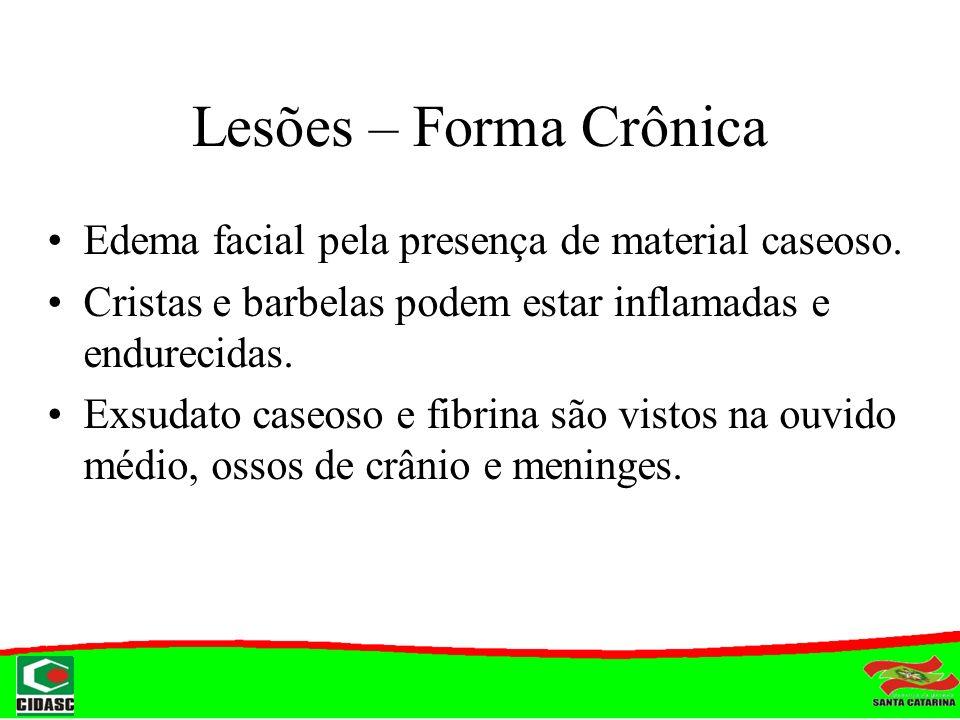 Lesões – Forma Crônica Edema facial pela presença de material caseoso.