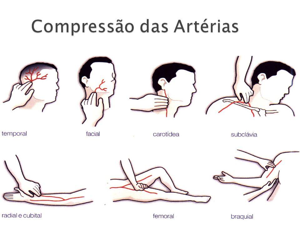 Compressão das Artérias