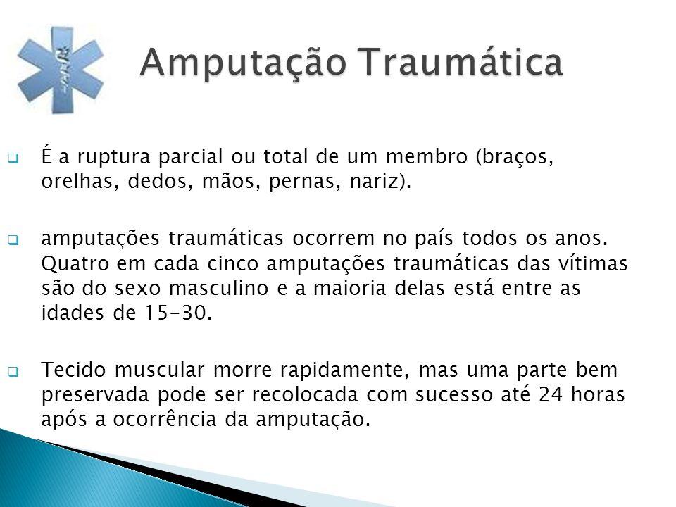 Amputação Traumática É a ruptura parcial ou total de um membro (braços, orelhas, dedos, mãos, pernas, nariz).