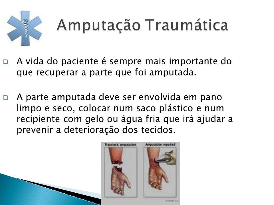 Amputação Traumática A vida do paciente é sempre mais importante do que recuperar a parte que foi amputada.