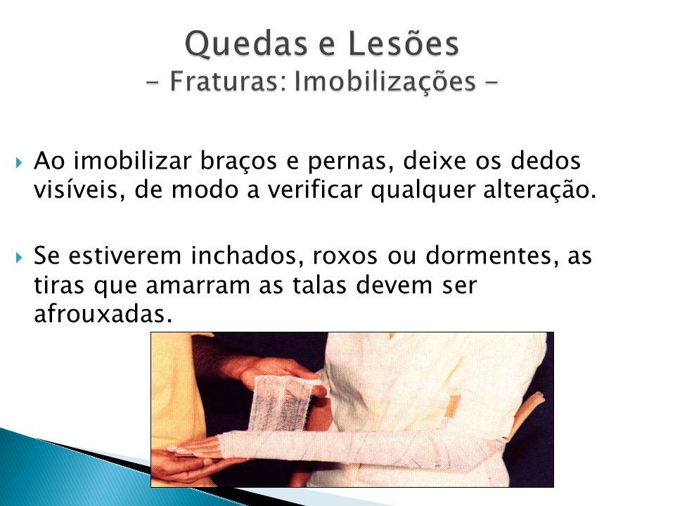 Quedas e Lesões - Fraturas: Imobilizações -
