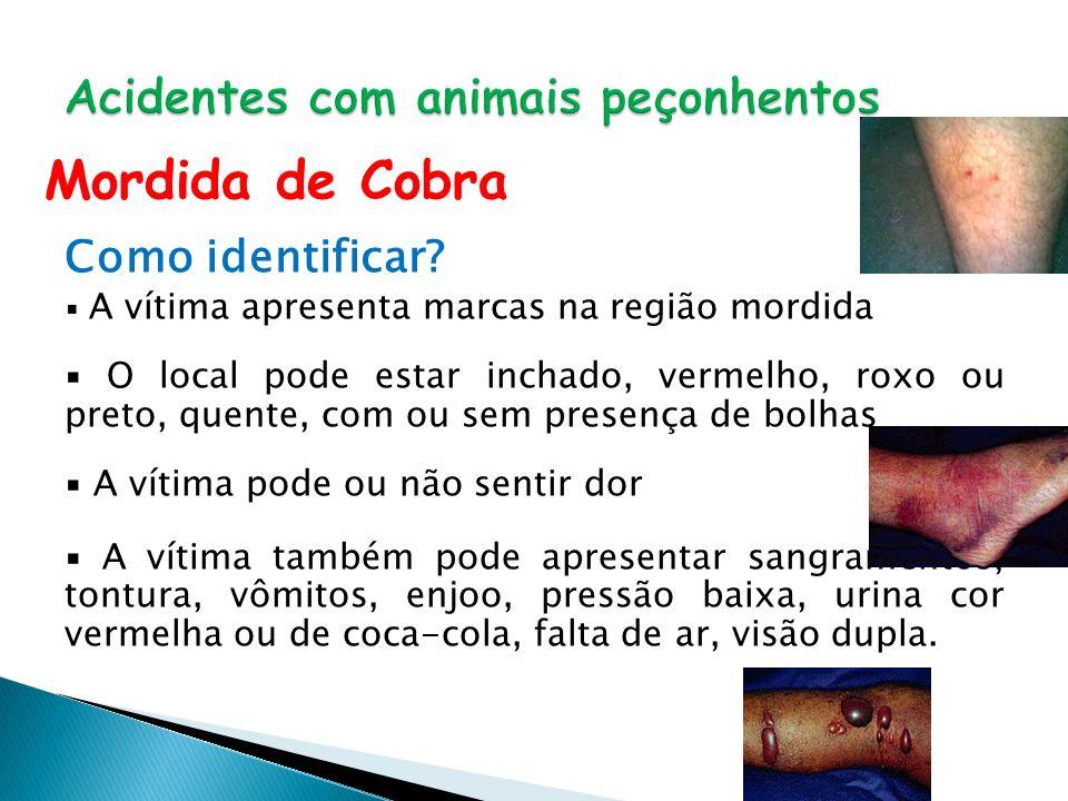 Acidentes com animais peçonhentos