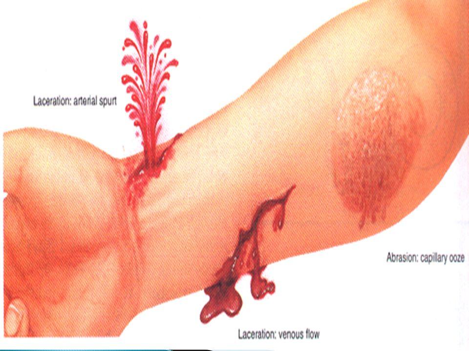 Hemorragias e Sangramentos - Sinais e Sintomas -