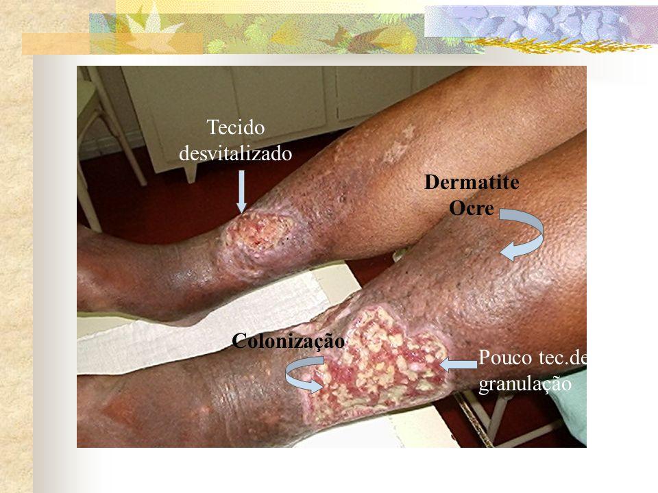 Tecido desvitalizado Dermatite Ocre Colonização Pouco tec.de granulação